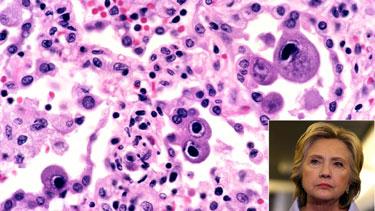 hillarypneumonia